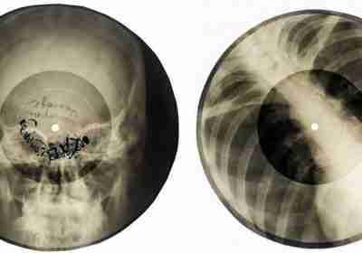 vinili stampati su radiografie